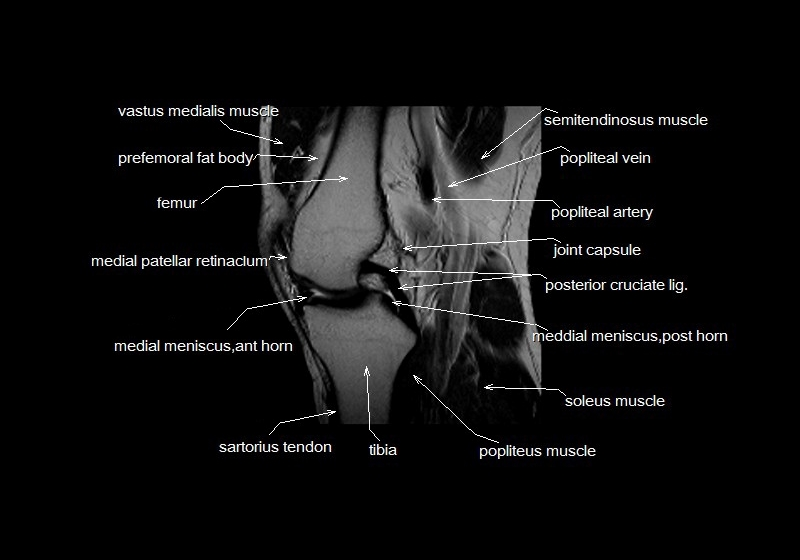 Mri knee anatomy knee sagittal anatomy free cross sectional mri knee cross sectional anatomy sagittal image 17 previous next ccuart Images
