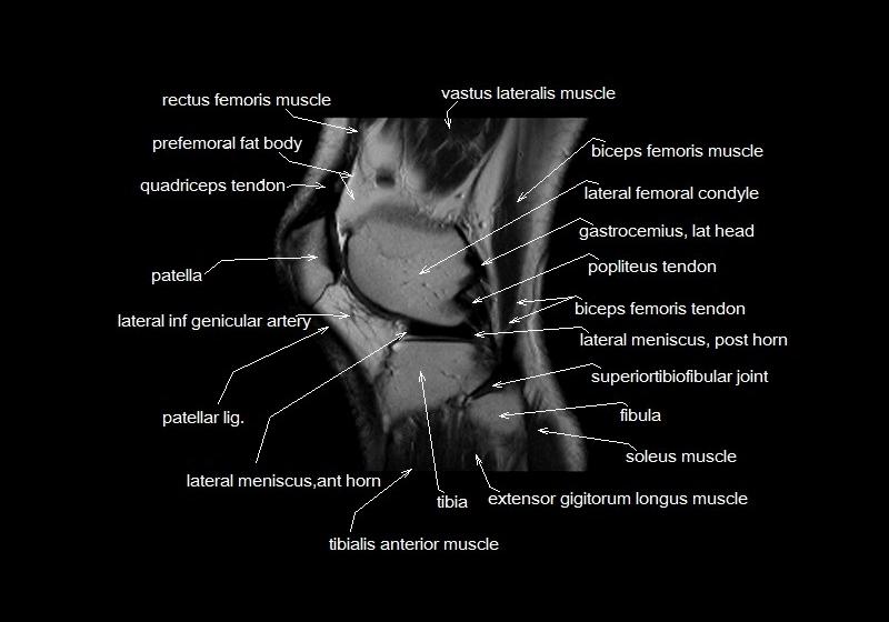 Mri Knee Anatomy Knee Sagittal Anatomy Free Cross