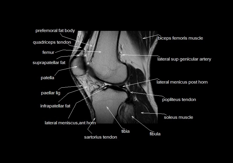 Mri Anatomy Of Knee Image collections - human body anatomy