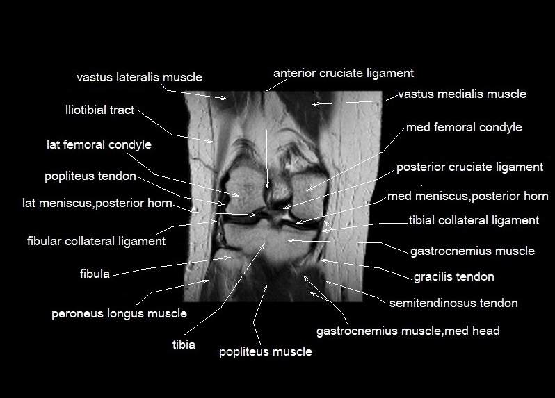 knee anatomy | MRI knee coronal anatomy | free cross sectional anatomy |