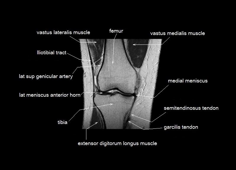 knee anatomy | MRI knee coronal anatomy | free cross sectional anatomy |