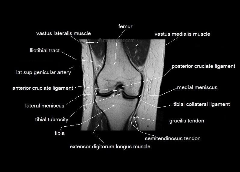 Mri Knee Structure Diagram Block And Schematic Diagrams