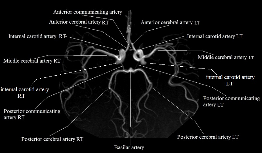 Brain Arteries Mra Brain Arteries Anatomy