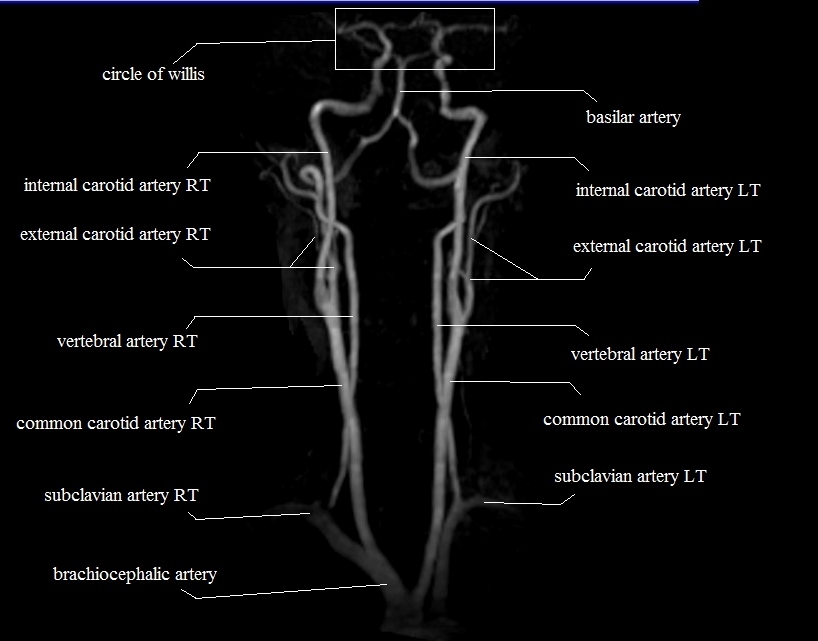 neck arteries | MRA neck arteries anatomy
