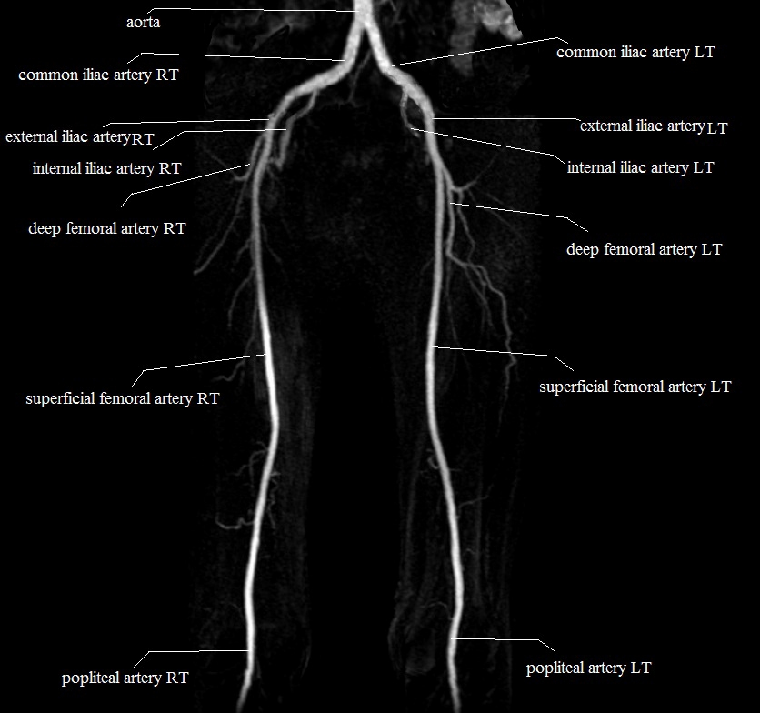 upper legs arteries | MRA upper legs arteries anatomy | thigh arteries