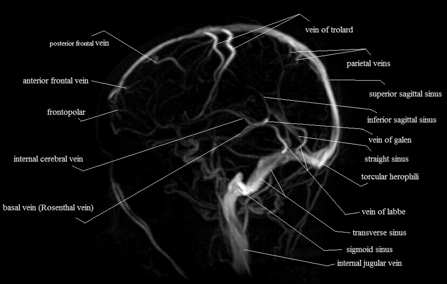 veins of brain| MRV brain veins anatomy