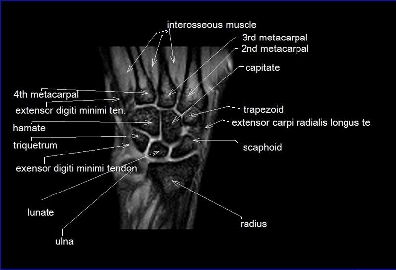Mri Wrist Coronal Anatomy Radiology Anatomy Images