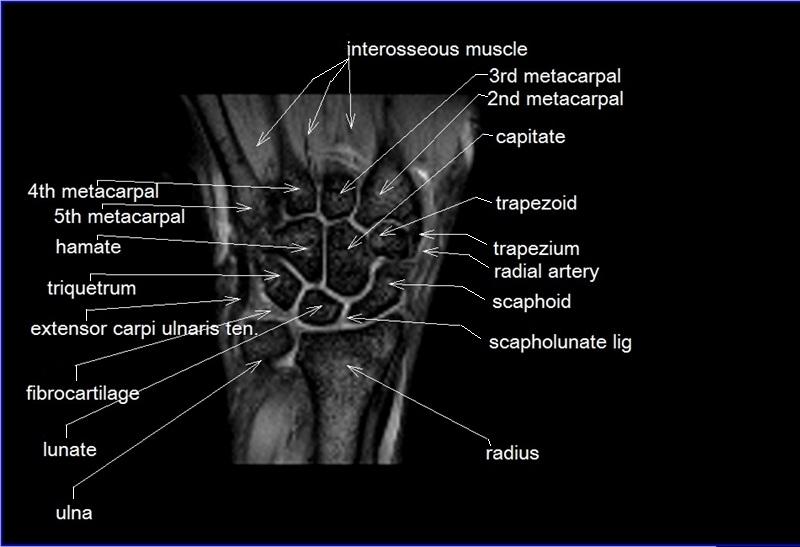 Mri wrist anatomy