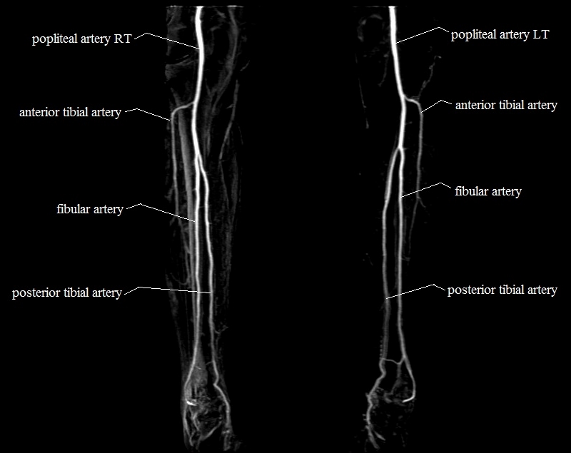 lower legs arteries | MRA lower legs arteries anatomy