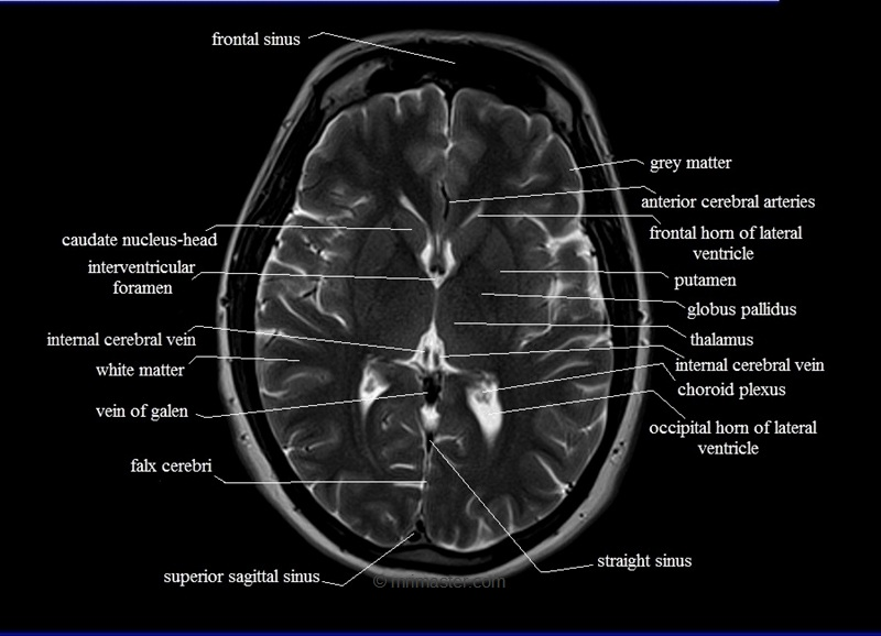 Anatomy of ct brain