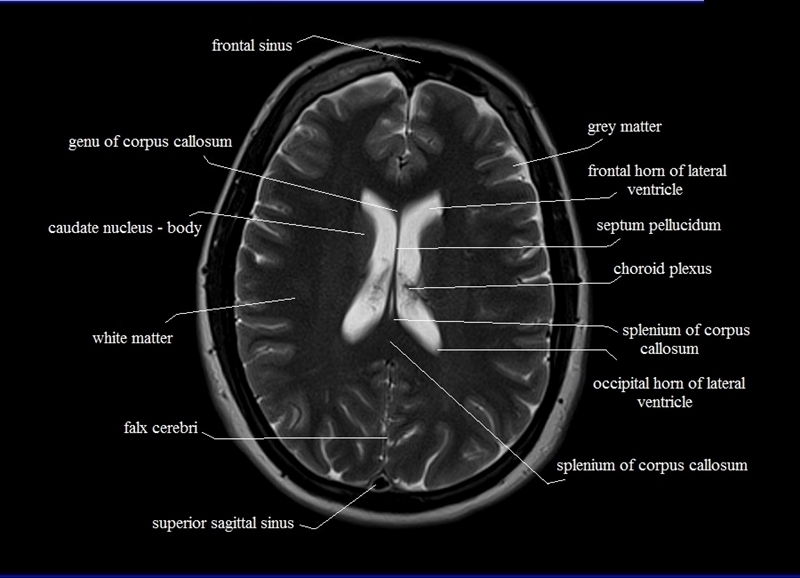 Ct brain cross sectional anatomy