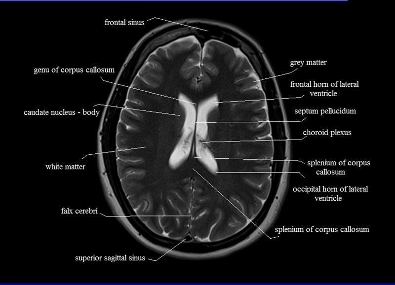 Mri Brain Anatomy This...
