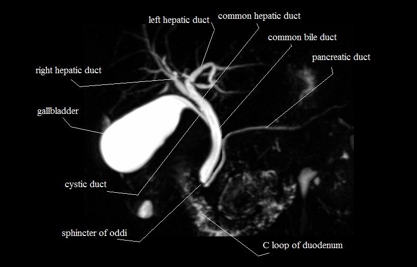 Mri mrcp anatomy