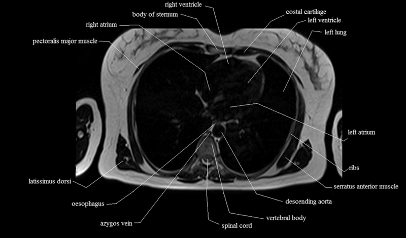 Elbow Muscle Anatomy Mri 2167539 Togelmayafo