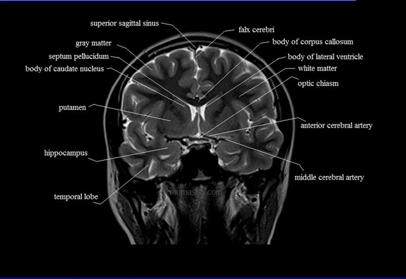 Mri cross sectional anatomy brain