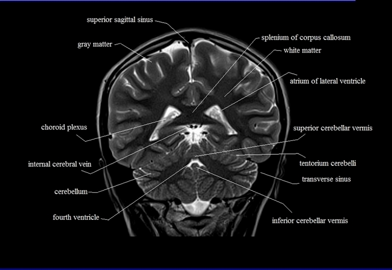 Coronal brain anatomy