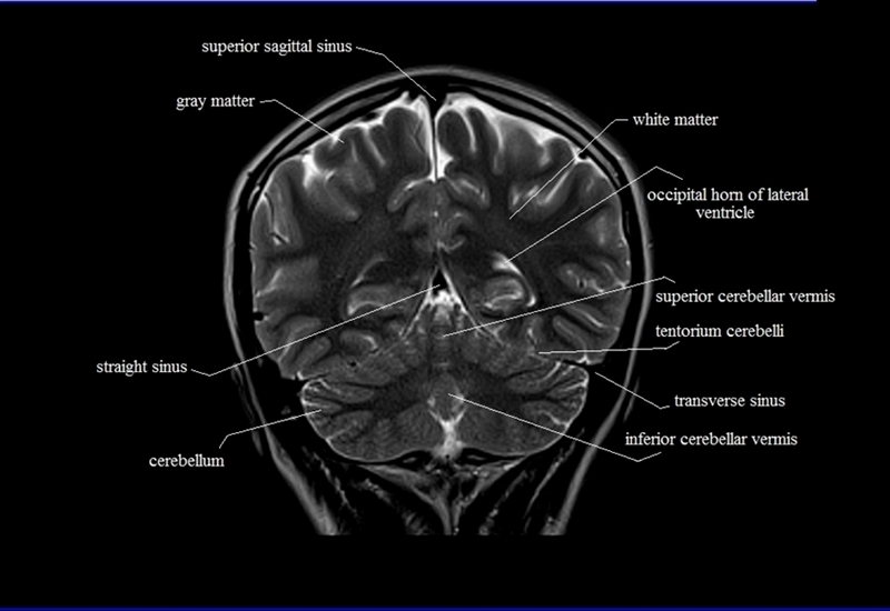 Images Of Brain Hippocampus Coronal Spacehero