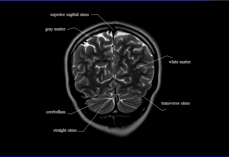 Index Of Anatomycoronal Brain