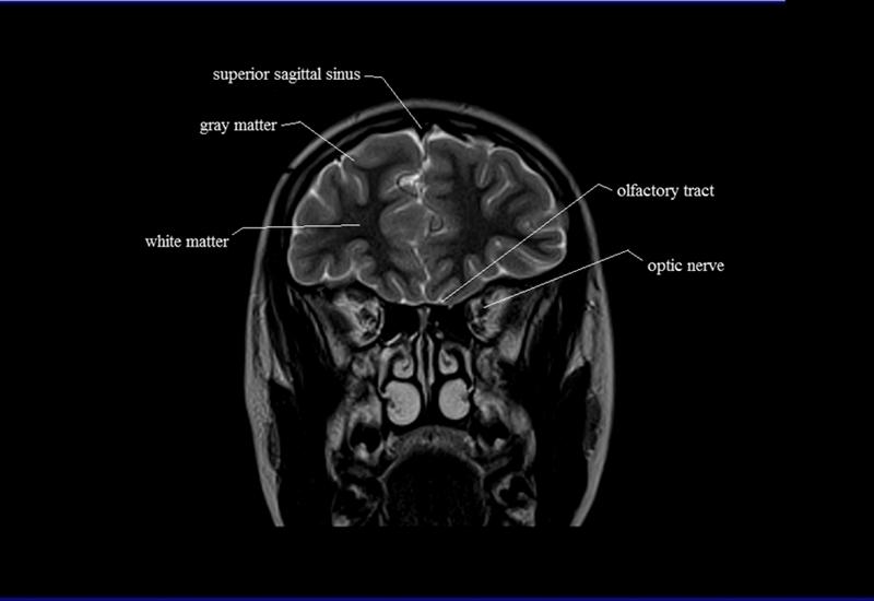 brain anatomy   MRI coronal brain anatomy   free MRI cross sectional ...