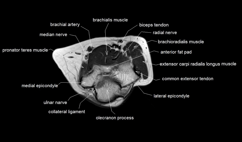 mri anatomy of elbow | axial cross sectional anatomy of elbow joint