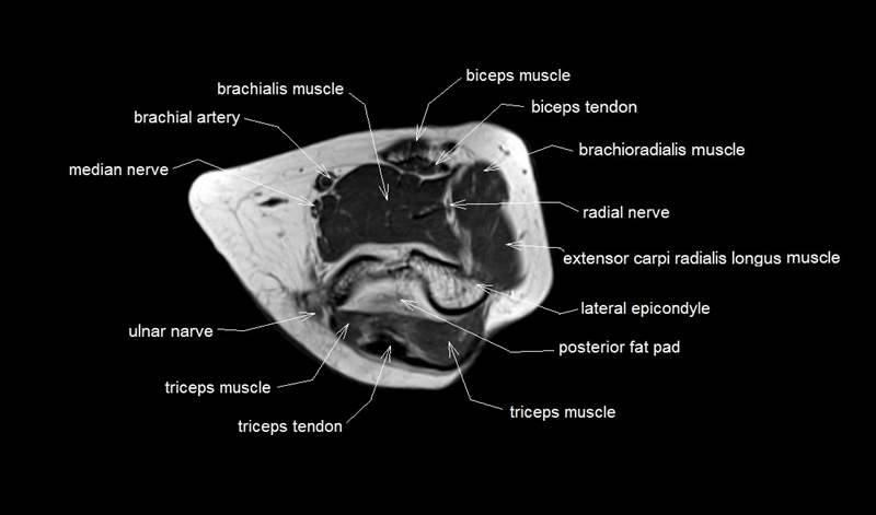 Mri Anatomy Of Elbow Axial Cross Sectional Anatomy Of Elbow Joint