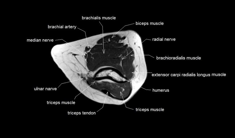 Index Of Anatomyelbow