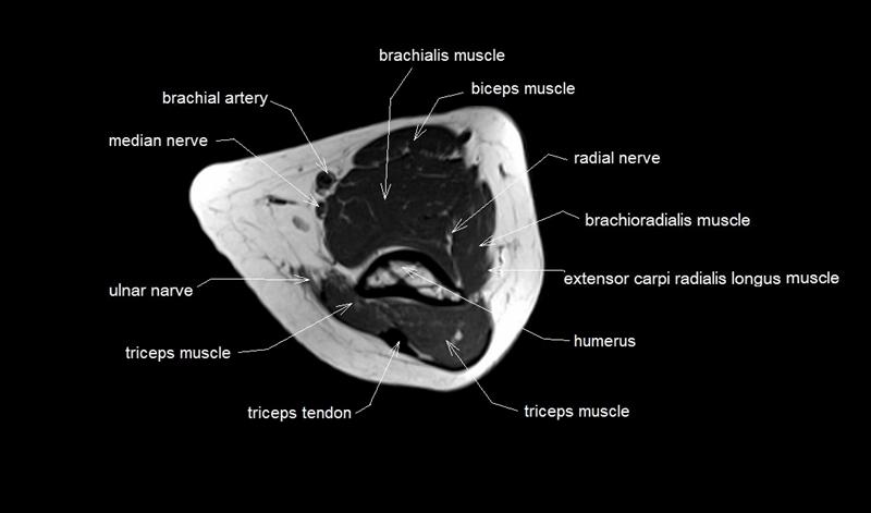 Elbow Muscle Anatomy Mri Image collections - human body anatomy