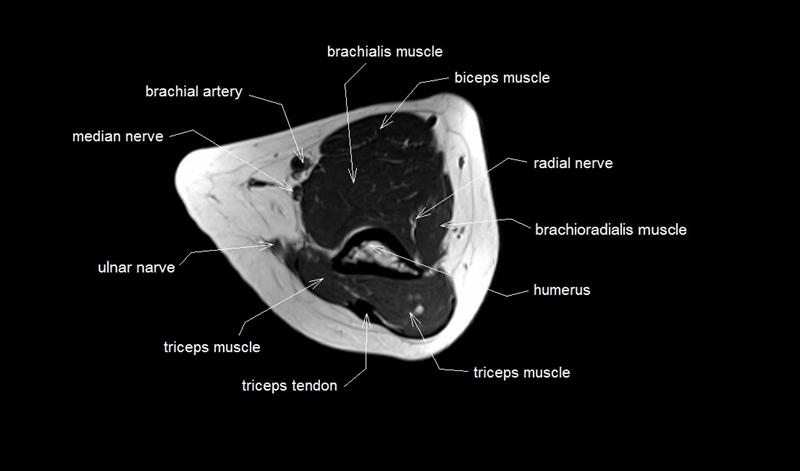 Elbow Dislocation - Core EM
