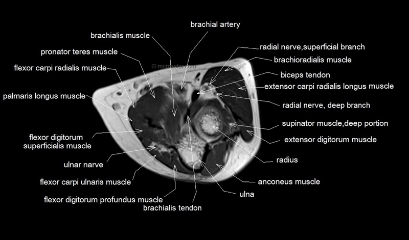 Ct scan chest anatomy