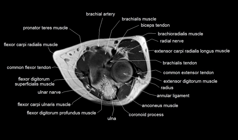 Mri Cross Sectional Anatomy - Garden View Landscape