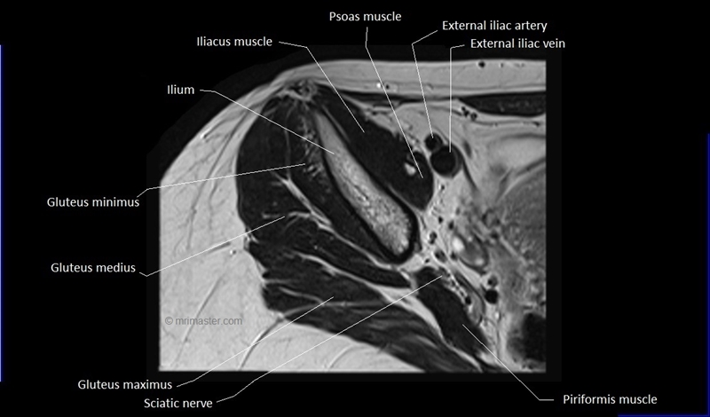 anatomy | WikiGait |Piriformis Muscle Mri