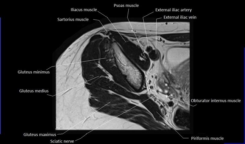 MRI anatomy of hip joint | free MRI axial hip anatomy |Piriformis Muscle Mri
