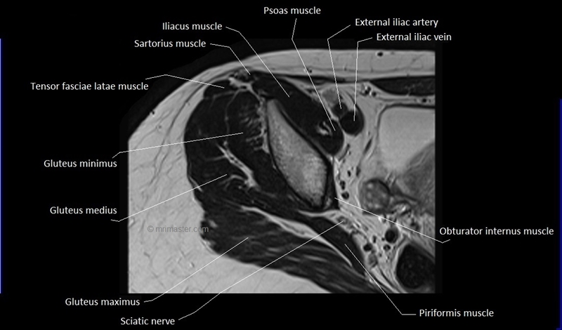 Mri Anatomy Of Hip Joint Free Mri Axial Hip Anatomy