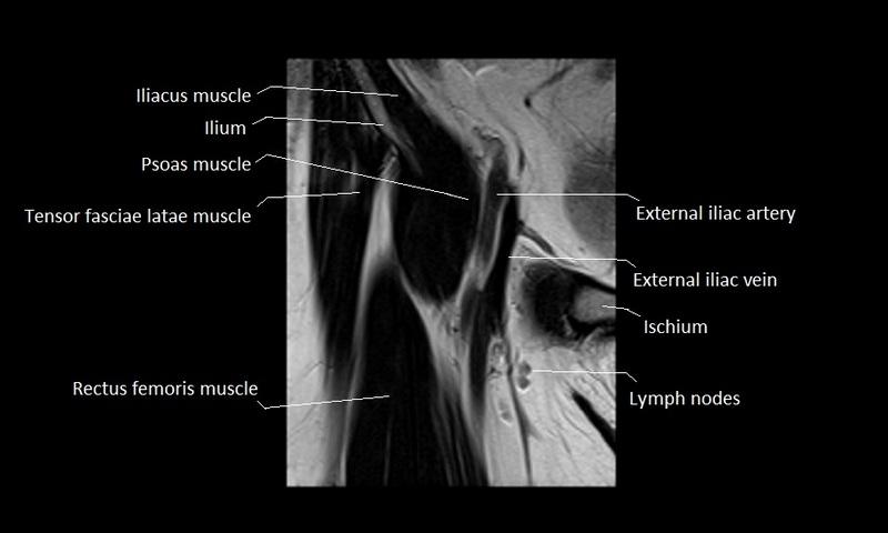 Hip mri anatomy