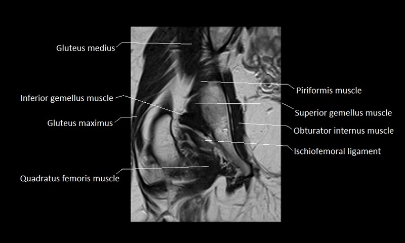 anatomy of hip joint | free MRI coronal cross sectional anatomy of ...