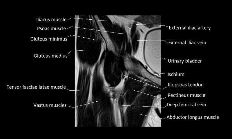 Anatomy Of Hip Joint Free Mri Coronal Cross Sectional Anatomy Of