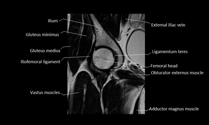 Anatomy Of Hip Joint Free Mri Coronal Cross Sectional Anatomy Of
