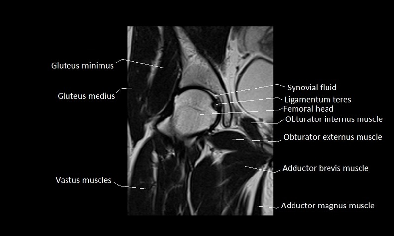 Amazing Mri Anatomy Shoulder Component Anatomy And Physiology