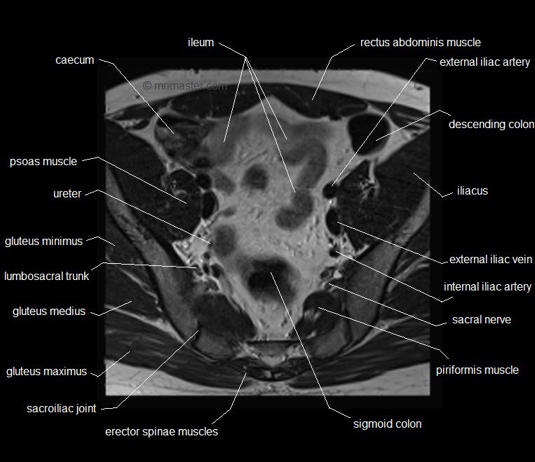 Pelvic Muscles Anatomy Ct Student Photo Image With Pelvic Muscles ...