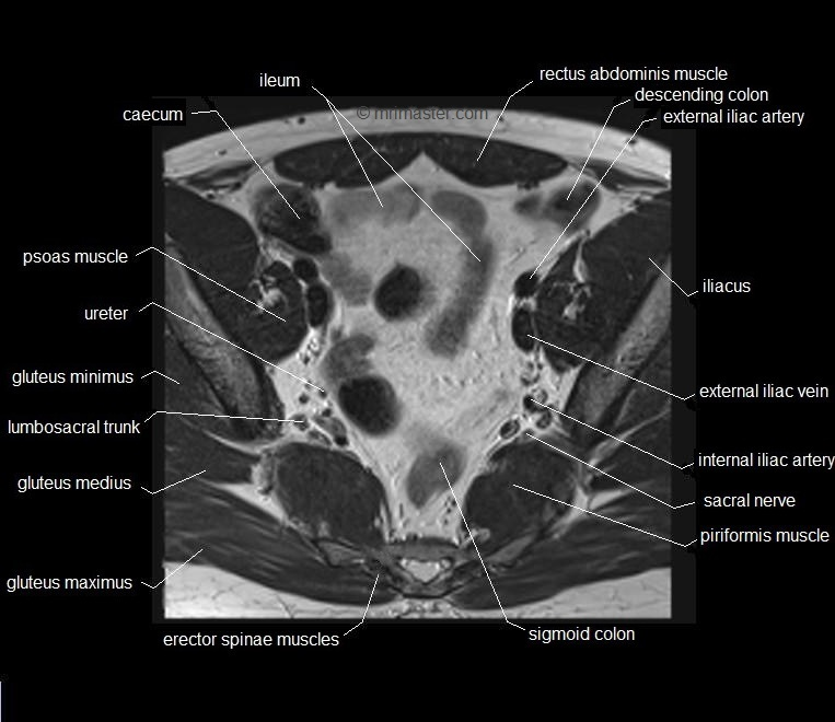 Mri Pelvis Anatomy Free Male Pelvis Axial Anatomy