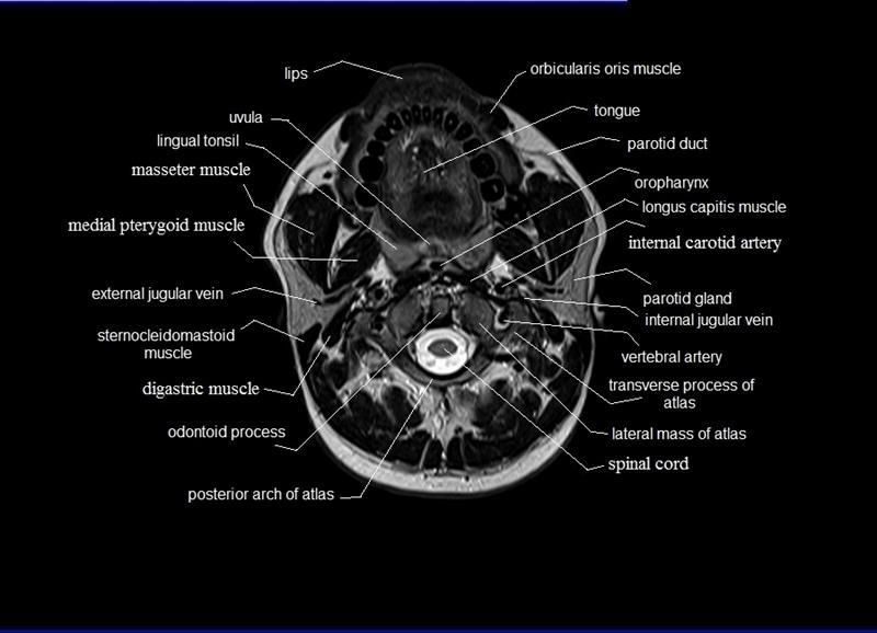 MRI neck anatomy | free MRI axial neck cross sectional anatomy