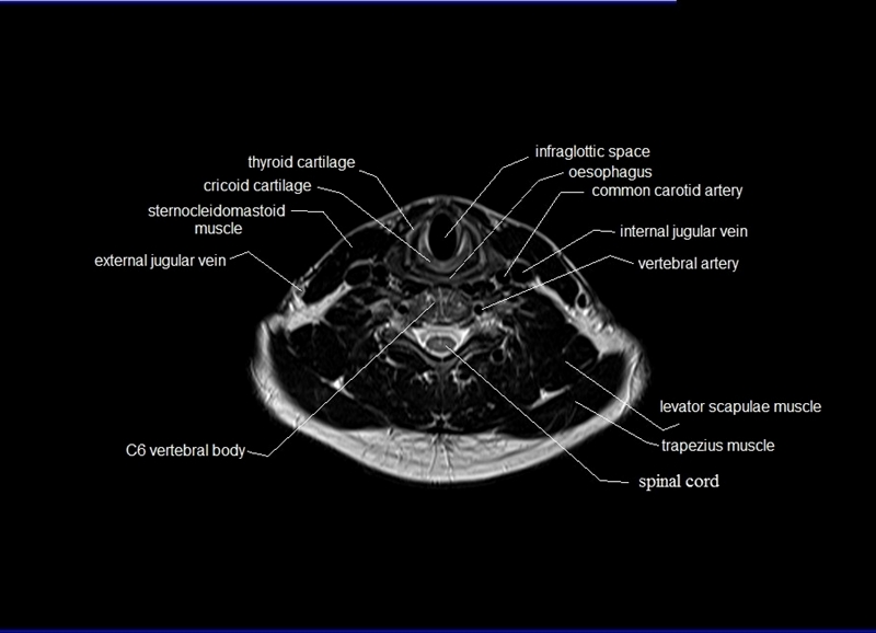 List Of Synonyms And Antonyms Of The Word Neck Anatomy Mri