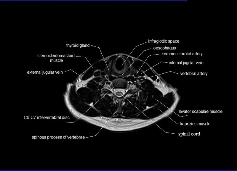 Mri Neck Anatomy Free Mri Axial Neck Cross Sectional Anatomy