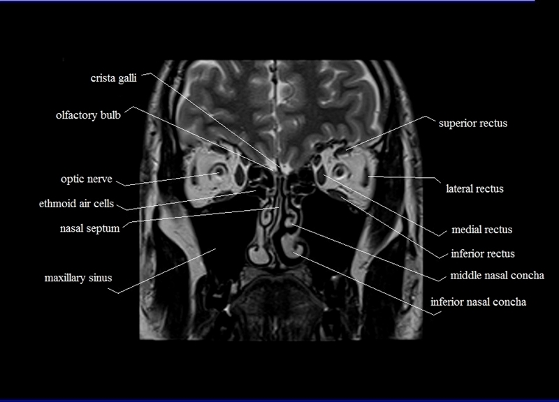 Mri orbit anatomy