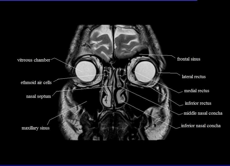 Mri orbit anatomy