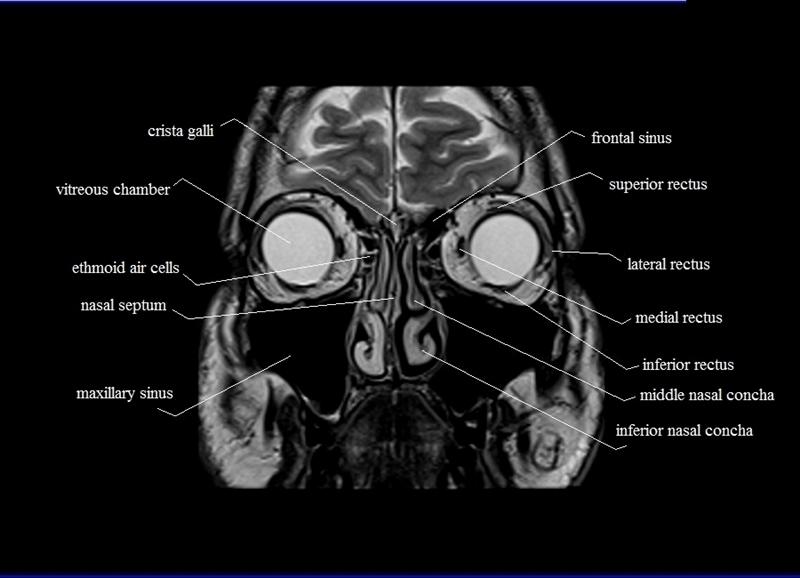 Orbit mri anatomy