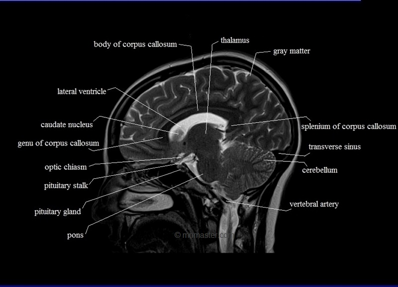 Preliminary core 2   learning resources likewise Human Anatomy Brain Spine Cat Brain Anatomy Human Anatomy Diagram furthermore 376121006349803274 also 6344513 additionally . on brain arteries labeling