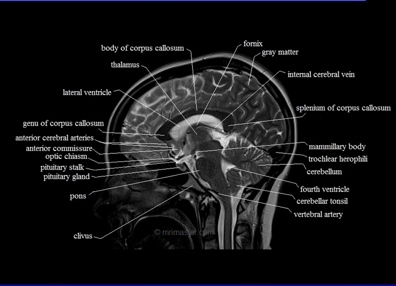 Cross Sectional Anatomy Mri Brain Sagittal Anatomy Free Mri