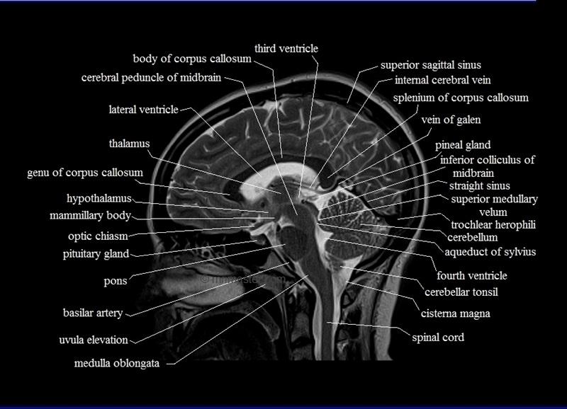 This MRI brain sagitta...