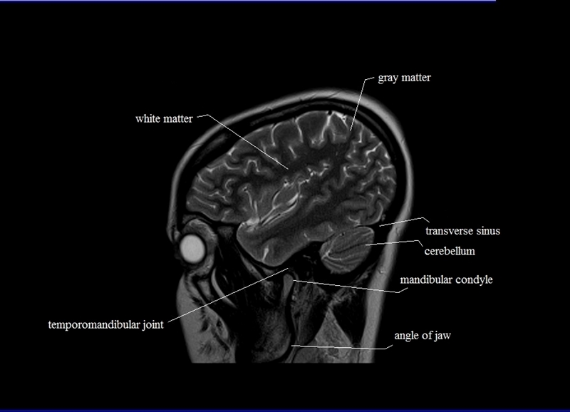 cross sectional anatomy | MRI brain sagittal anatomy | free MRI ...